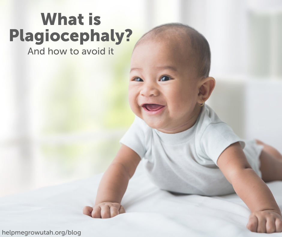 What is Plagiocephaly?